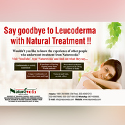 Say goodbye to Leucoderma with natural treatment!