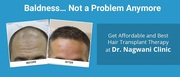Hair transplant less than half cost