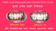 Cosmetic Dentistry in Kolkata-Teeth Care Multispeciality Dental Clinic